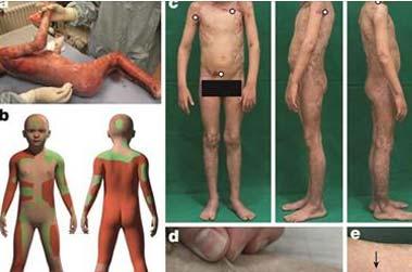 Une greffe de peau quasi intégrale réussie sur un enfant de 7 ans