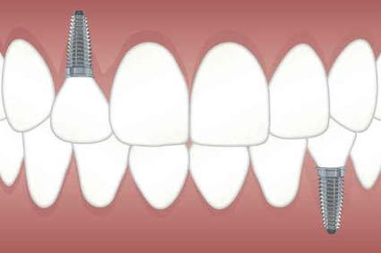 Zéro reste à charge : les dentistes grincent des dents !